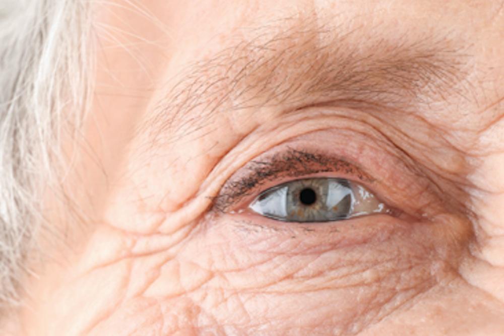 Is LASIK Safe for Older Adults